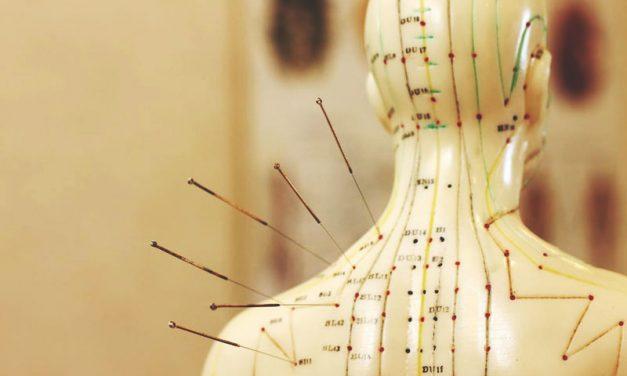 L'acupuncture, quels bienfaits pour vos articulations ?