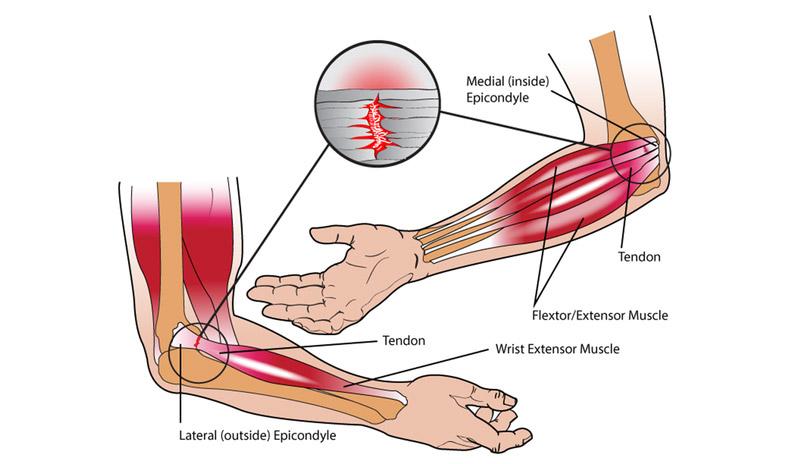 soigner tennis elbow